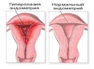 Все о выскабливании полости матки: причины, ход процедуры, осложнения и реабилитация
