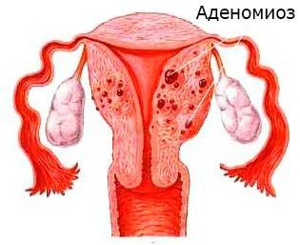 Все об аденомиозе матки
