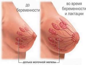 Выделения из груди перед месячными: причины
