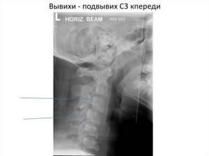 Вывих шейного позвонка, подвывих локтевого сустава, бедра у ребенка: 4 вида, способы лечения