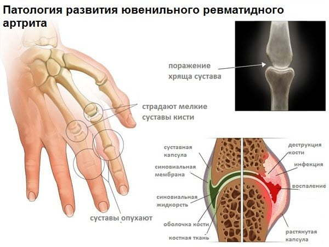 Ювенильный ревматоидный артрит у детей: симптомы, лечение, профилактика, препараты